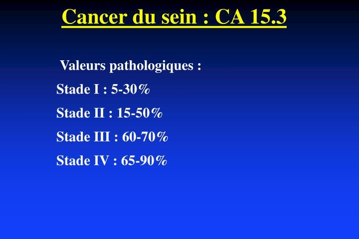 Cancer du sein : CA 15.3