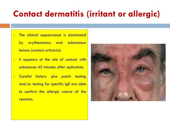 Contact dermatitis (irritant or allergic)