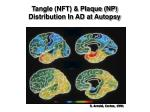 tangle nft plaque np distribution in ad at autopsy