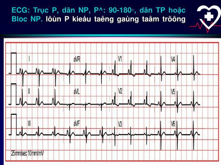 ECG: Trục P, dãn NP, P^: 90-180◦, dãn TP hoặc Bloc NP.
