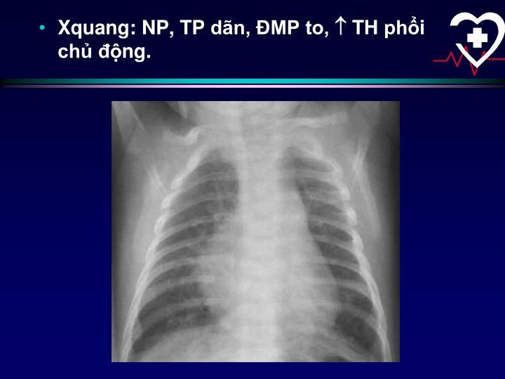 Xquang: NP, TP dãn, ĐMP to,