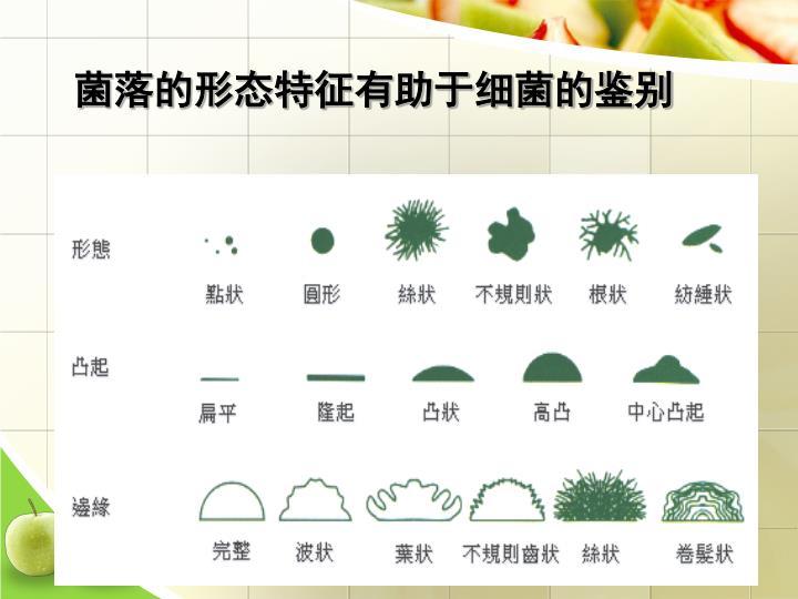 菌落的形态特征有助于细菌的鉴别