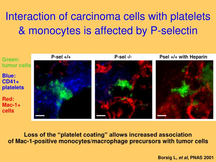 Interaction of carcinoma cells with platelets & monocytes is affected by P-selectin