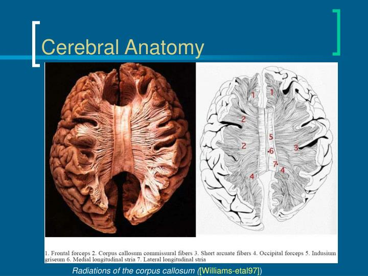 Cerebral Anatomy