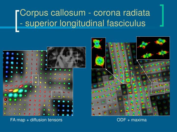 Corpus callosum - corona radiata - superior longitudinal fasciculus
