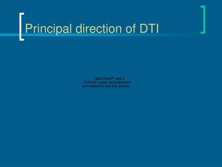 Principal direction of DTI