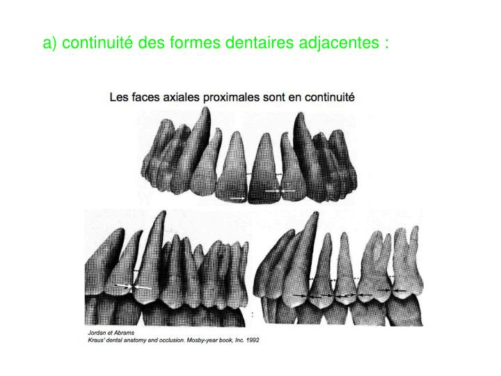 a) continuité des formes dentaires adjacentes :