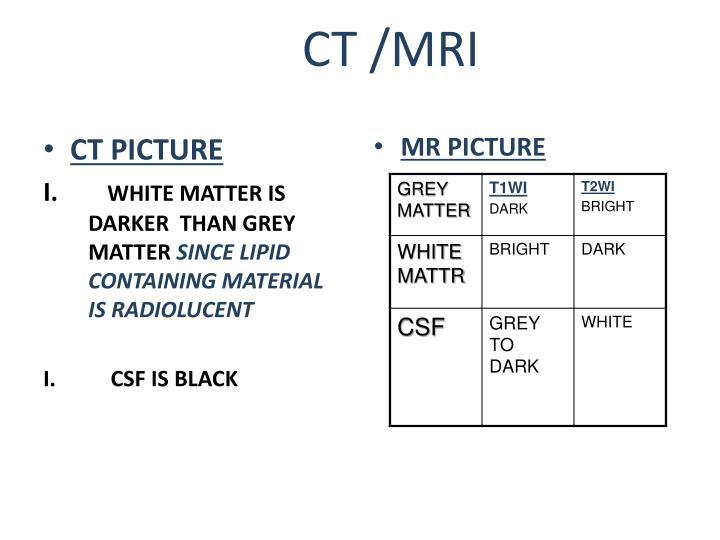 CT /MRI