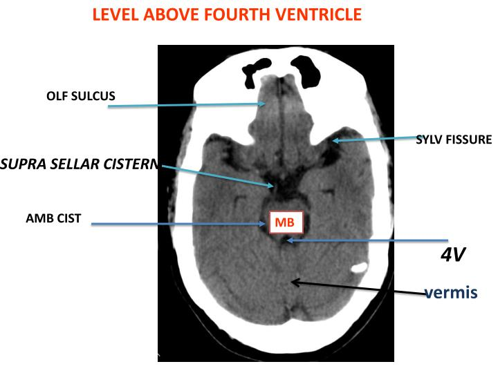 LEVEL ABOVE FOURTH VENTRICLE