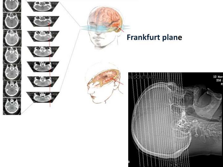 Frankfurt plan