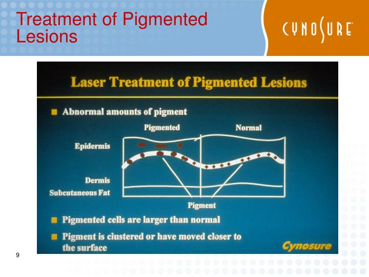 Treatment of Pigmented Lesions