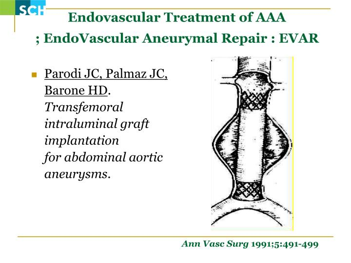 Endovascular Treatment of AAA