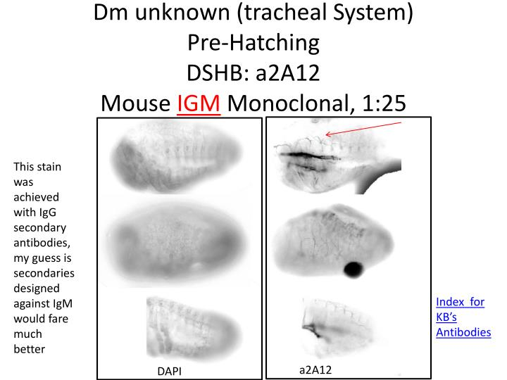 Dm unknown (tracheal System)