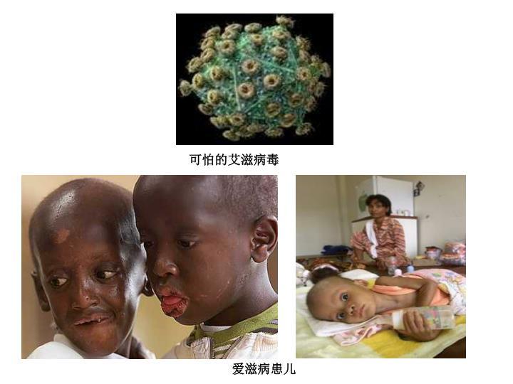 可怕的艾滋病毒