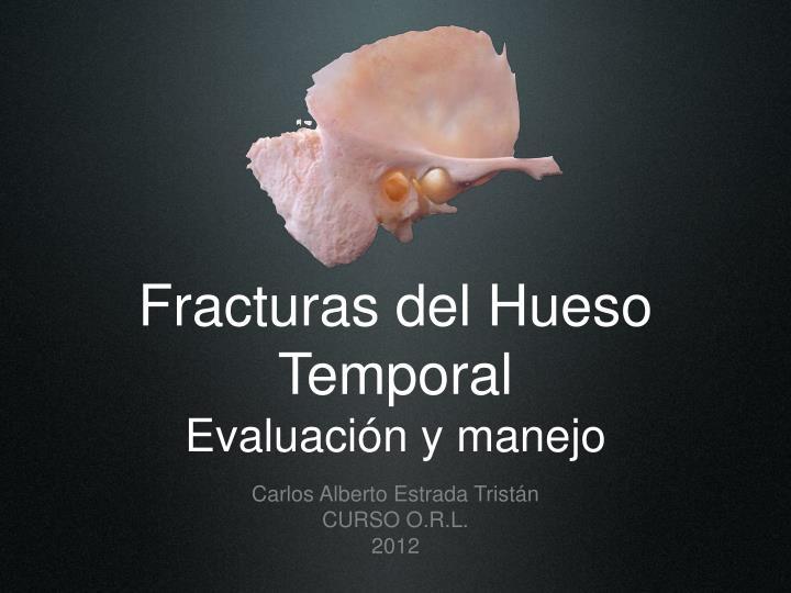 PPT - Fracturas del Hueso Temporal Evaluación y manejo PowerPoint ...