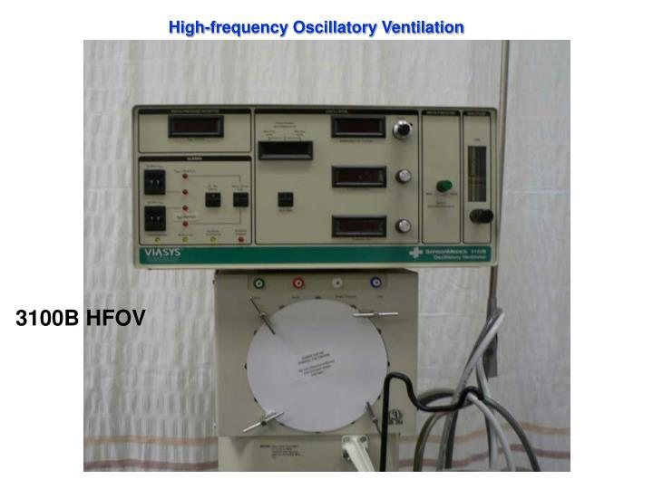 High-frequency Oscillatory Ventilation