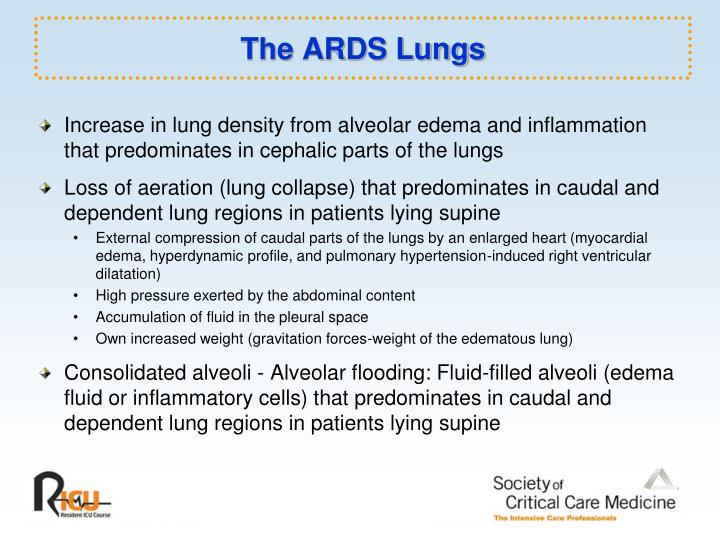The ARDS Lungs
