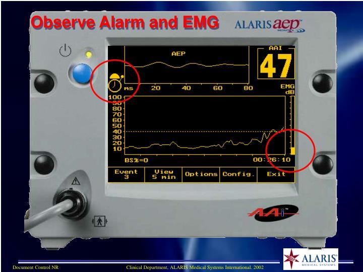 Observe Alarm and EMG