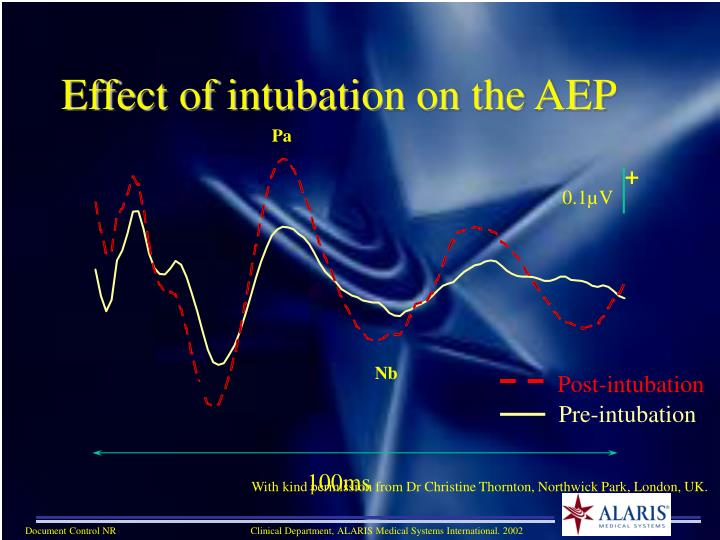 Effect of intubation on the AEP