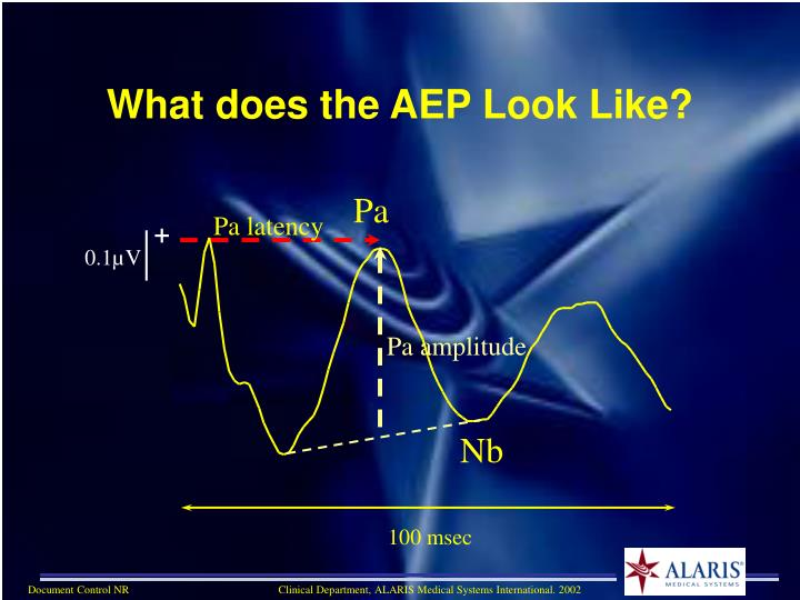 What does the AEP Look Like?