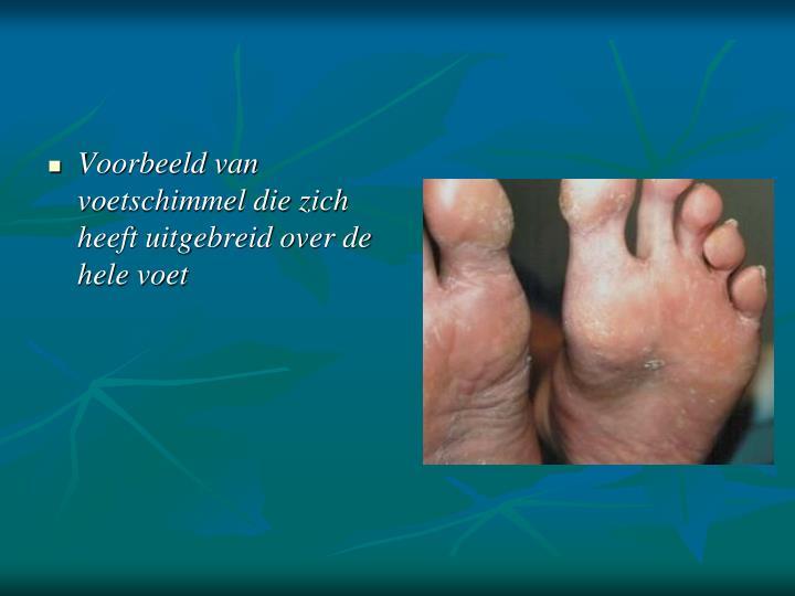 Voorbeeld van voetschimmel die zich