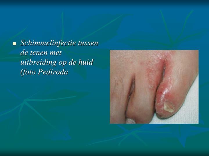 Schimmelinfectie tussen de tenen met