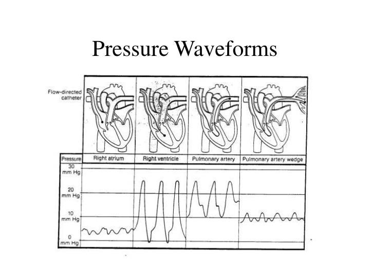 Pressure Waveforms
