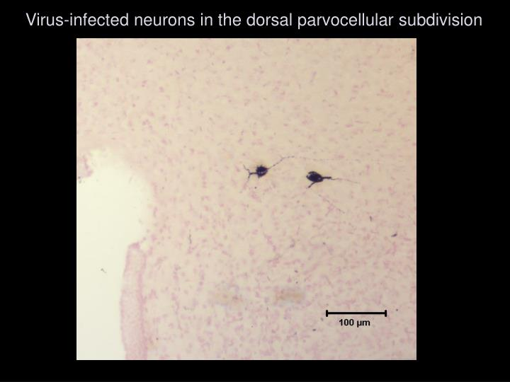 Virus-infected neurons in the dorsal parvocellular subdivision