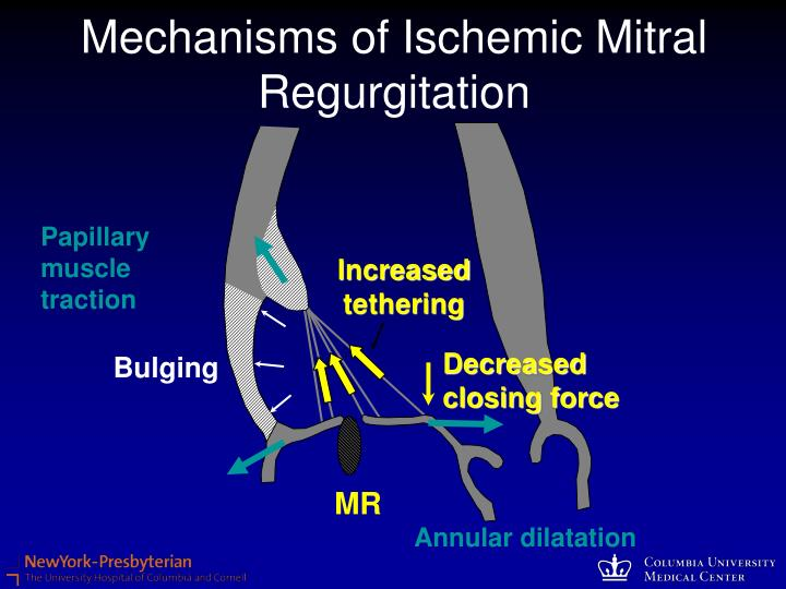 Mechanisms of Ischemic Mitral Regurgitation