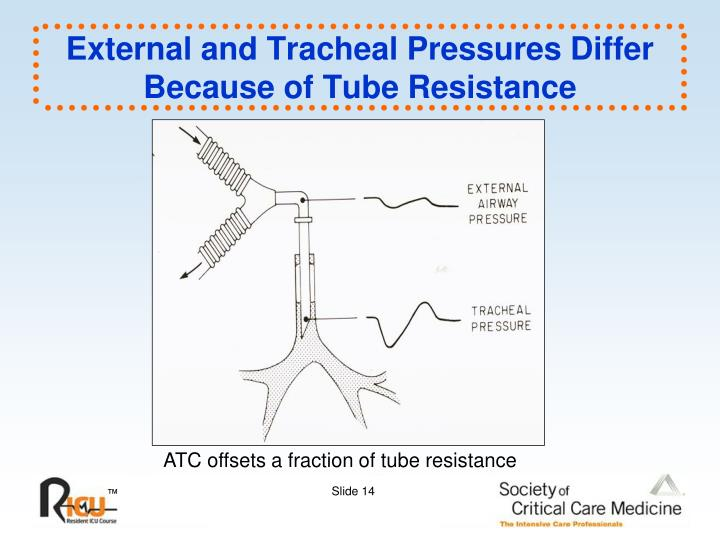 External and Tracheal Pressures Differ Because of Tube Resistance