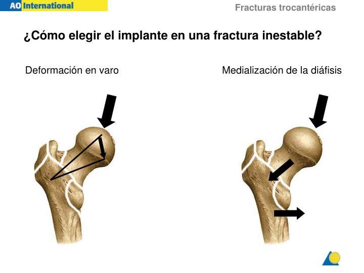¿Cómo elegir el implante en una fractura inestable?