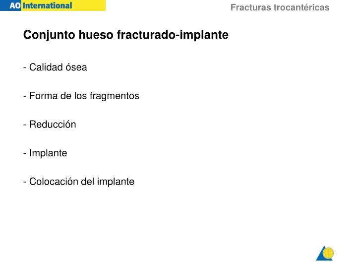 Conjunto hueso fracturado-implante