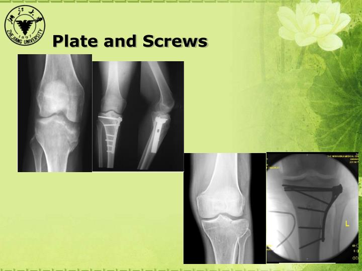 Plate and Screws