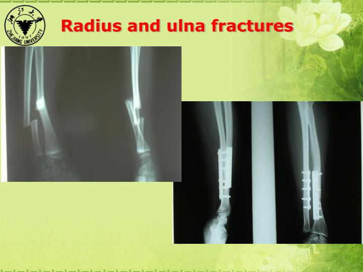 Radius and ulna fractures