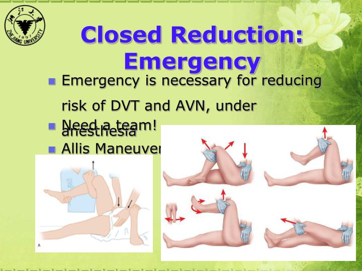 Closed Reduction: Emergency