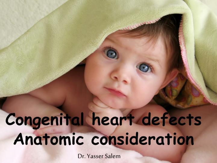 congenital heart defects anatomic consideration n.