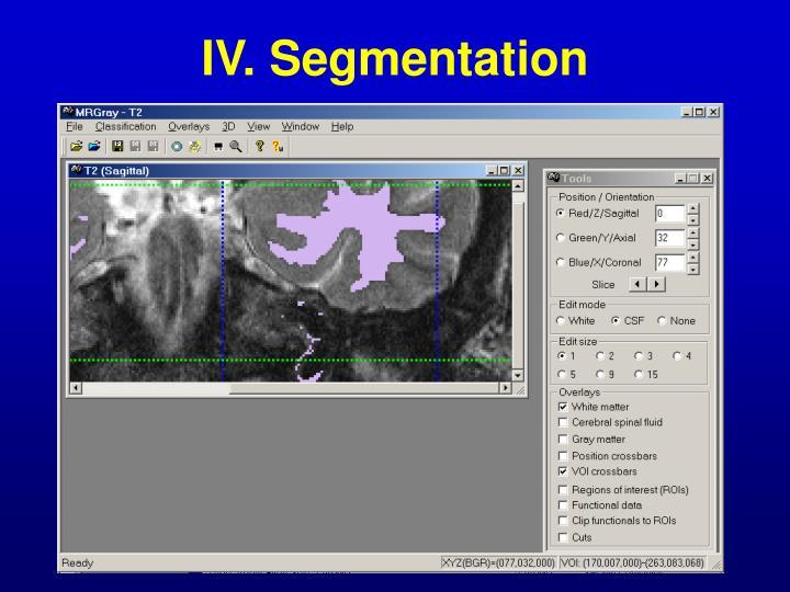 IV. Segmentation