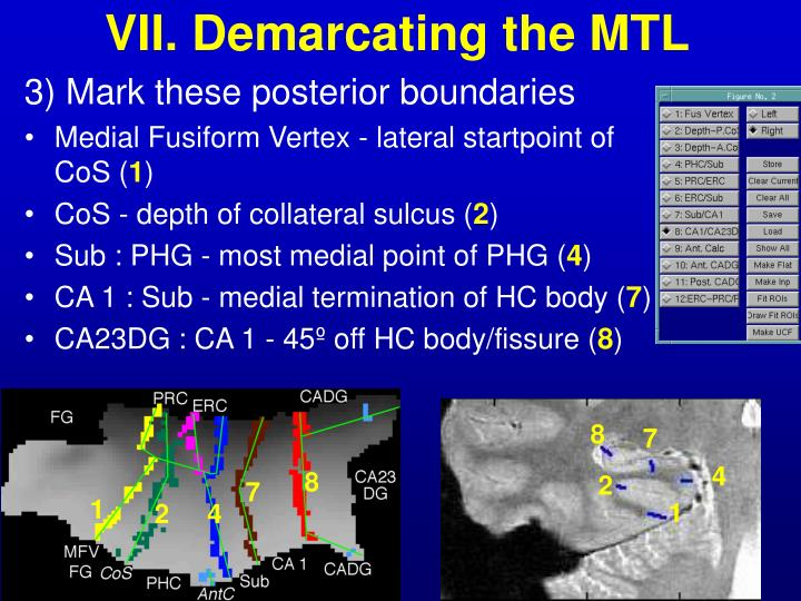 VII. Demarcating the MTL