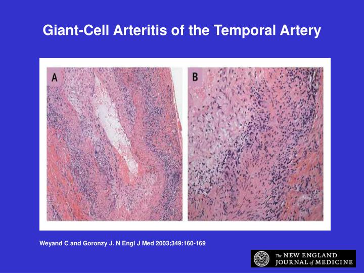 Giant-Cell Arteritis of the Temporal Artery