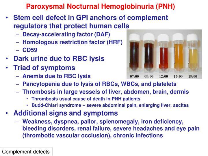 Paroxysmal Nocturnal Hemoglobinuria (PNH)