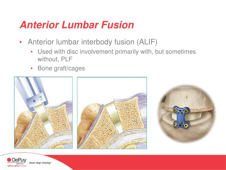 Anterior Lumbar Fusion