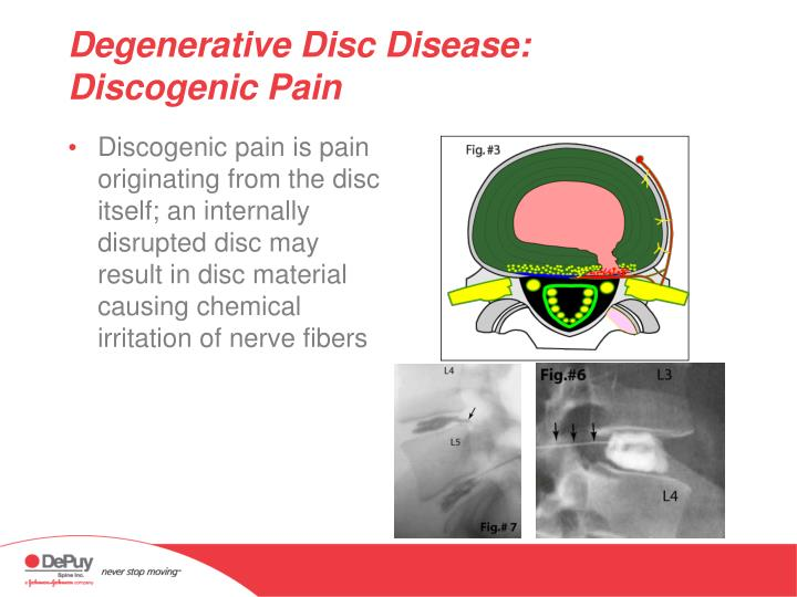 Discogenic pain is pain originating from the disc itself; an internally disrupted disc may result in disc material causing chemical irritation of nerve fibers