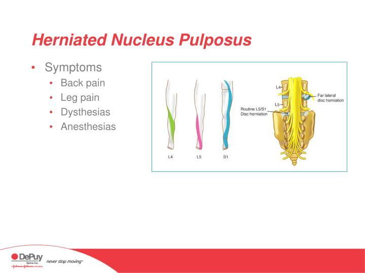 Herniated nucleus pulposus1