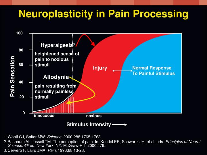 Neuroplasticity in Pain Processing
