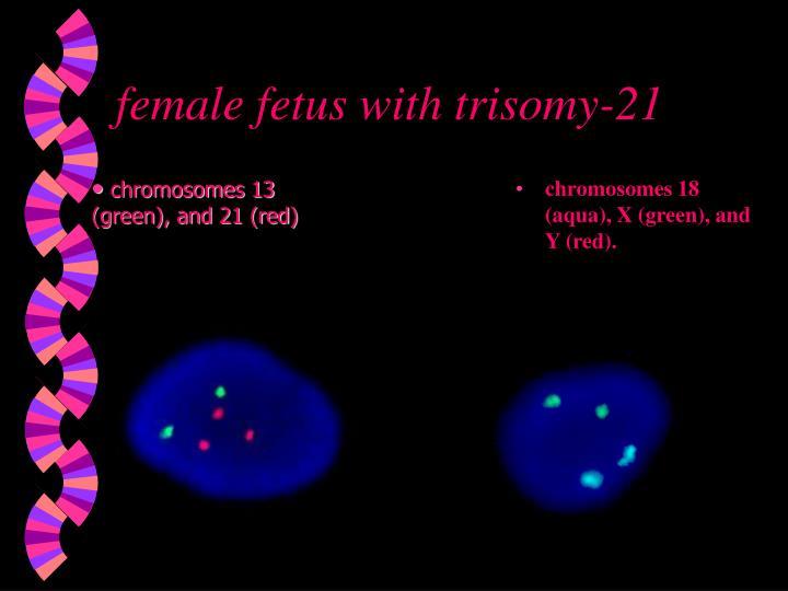 female fetus with trisomy-21