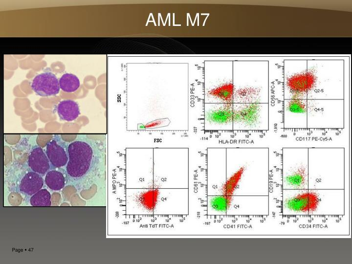AML M7