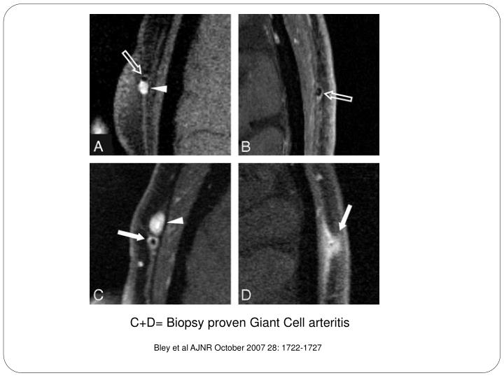 C+D= Biopsy proven Giant Cell arteritis