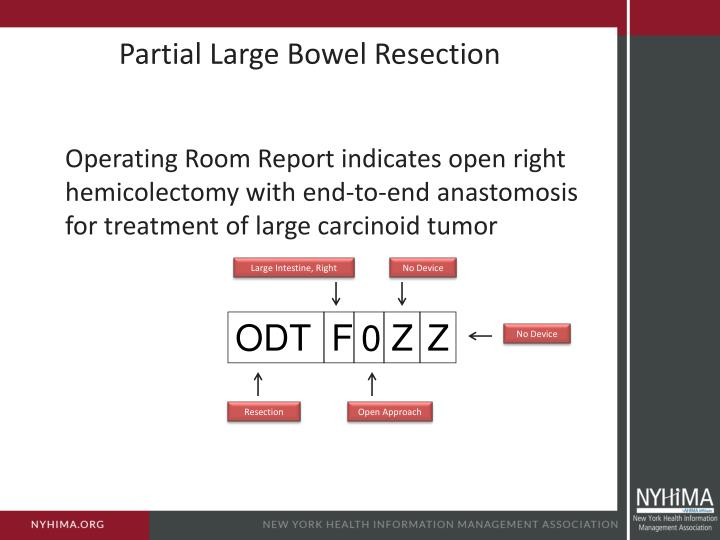 Partial Large Bowel Resection
