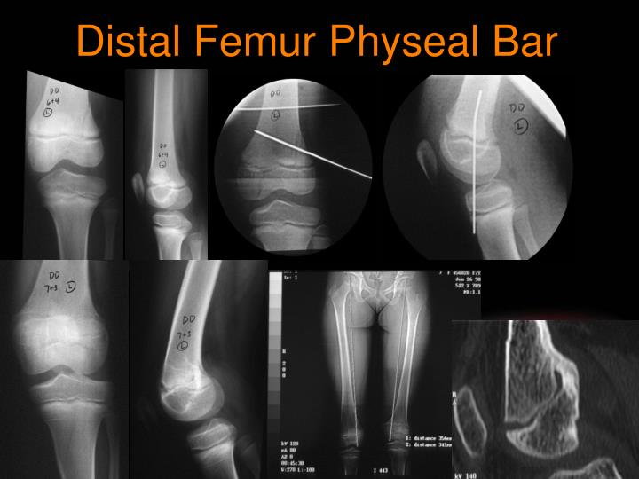 Distal Femur Physeal Bar