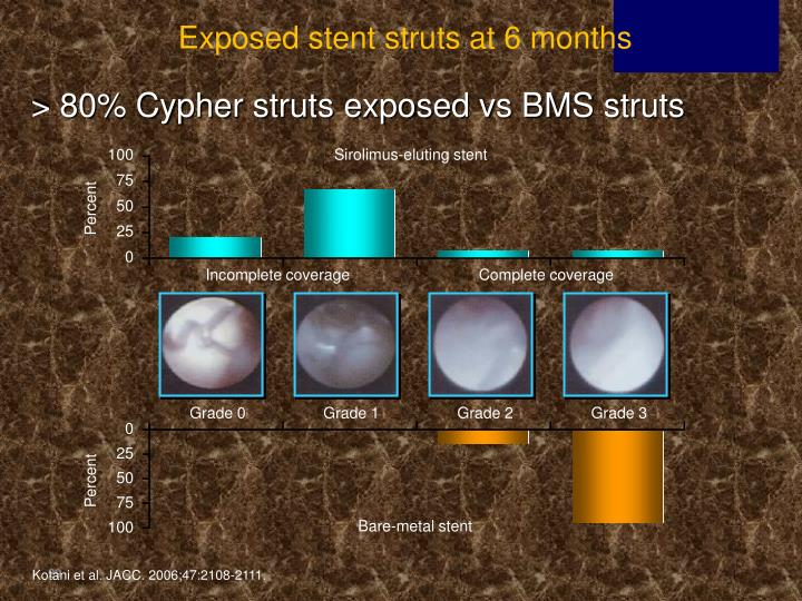 Exposed stent struts at 6 months